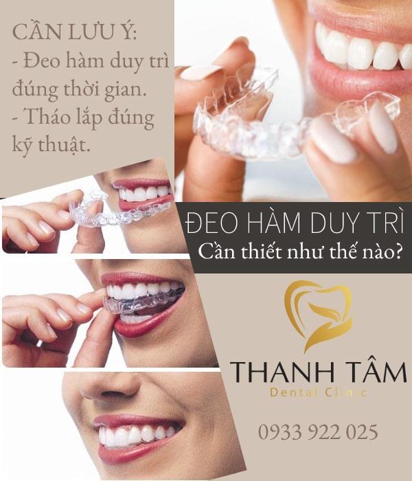 đeo hàm duy trì sau niềng răng bao lâu