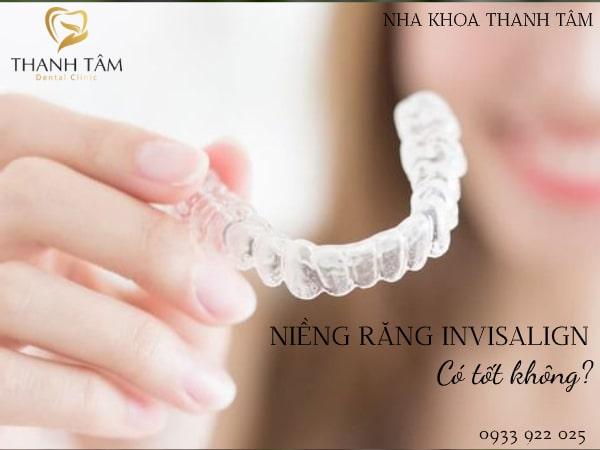 Phương án niềng răng hiện đại