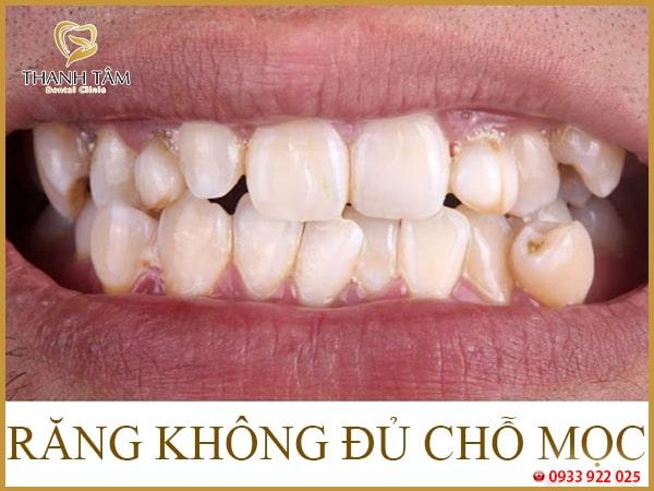 răng chen chúc
