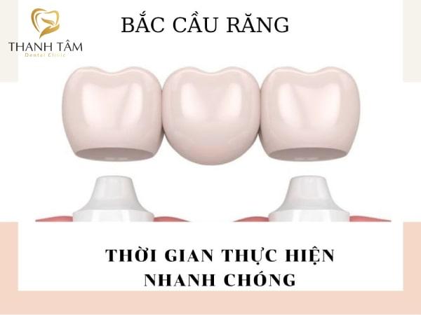 Bắc cầu răng