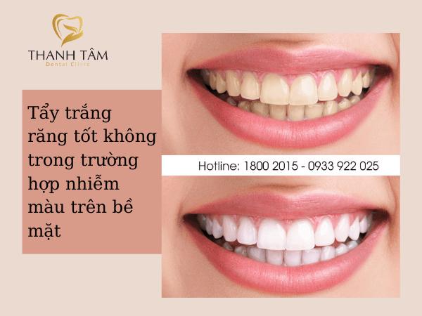 Tẩy trắng răng tốt không trong trường hợp răng nhiễm màu trên bề mặt