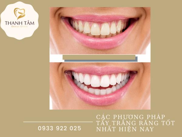 Các phương pháp tẩy trắng răng tốt nhất hiện nay