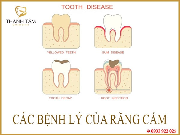 bệnh răng miệng