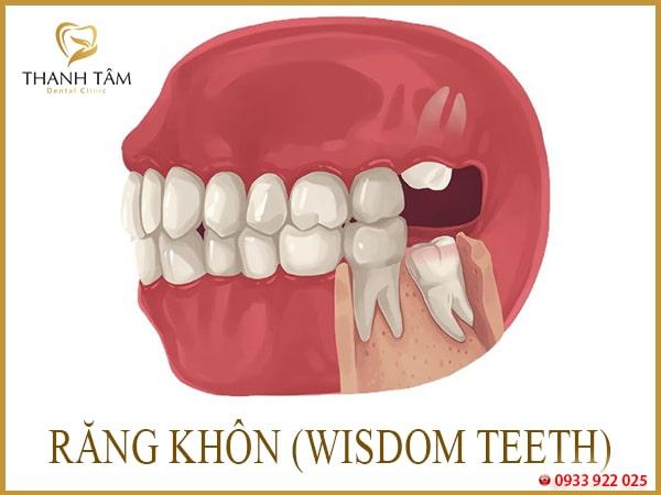 Răng khôn mọc ngầm trong xương