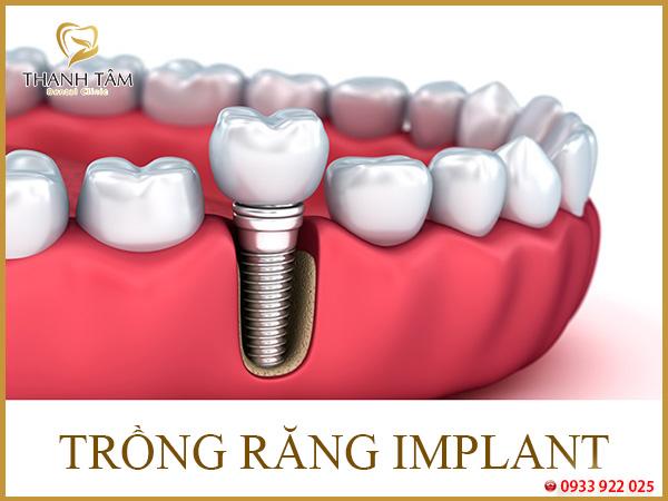 chăm sóc răng sau khi cắm implant