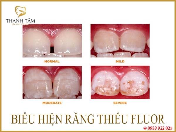 Răng nhiễm màu fluor