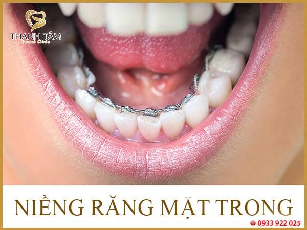 răng hàm dưới