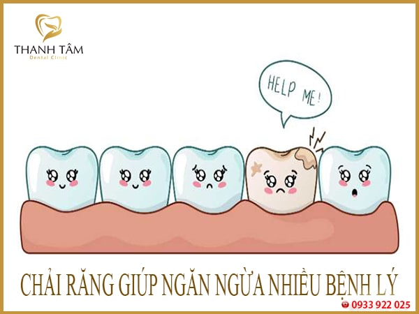 cách vệ sinh răng sứ