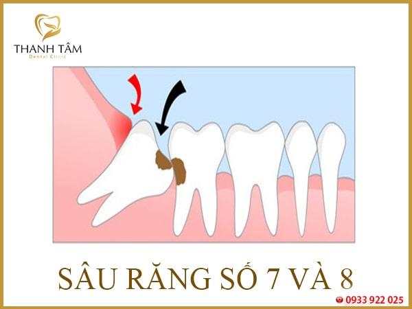 Răng số 8