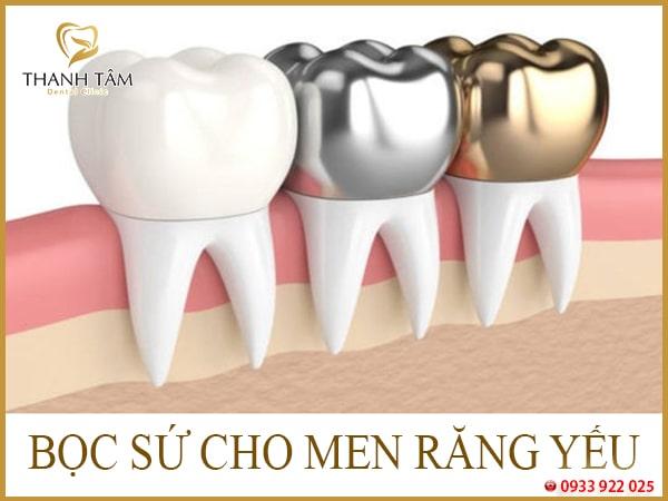 phục hồi men răng