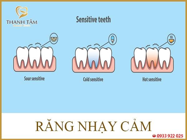 Tổng hợp các bệnh lý răng miệng thường gặp