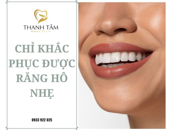 Khắc phục hiệu quả trường hợp răng hô nhẹ