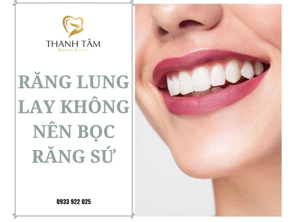 Răng lung lay không thể bọc răng sứ