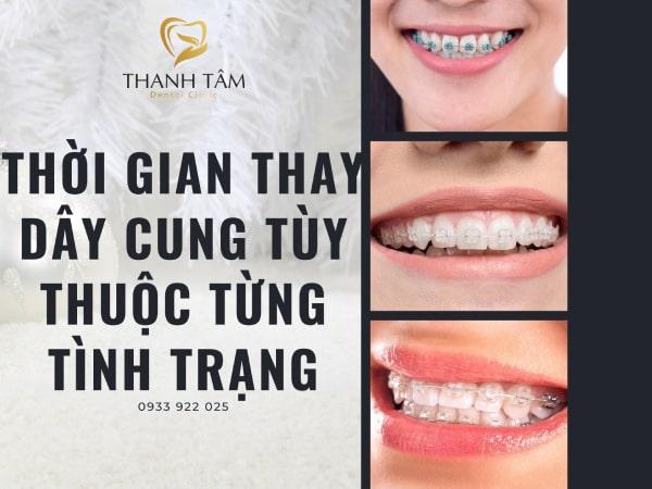 Tùy từng tình trạng răng khác nhau sẽ có sự điều chỉnh nhất định