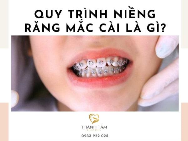 quy trình niềng răng mắc cài