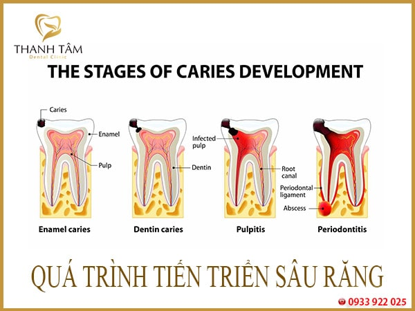 răng cấm bị sâu