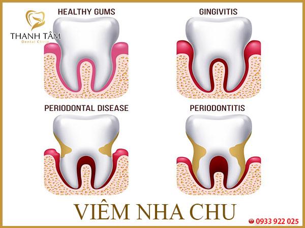 buốt răng hàm