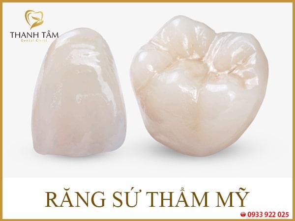 Răng bị nhiễm tetra