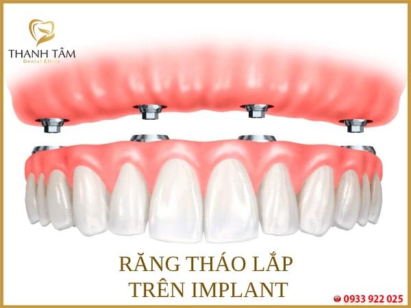 Răng tháo lắp trên Implant
