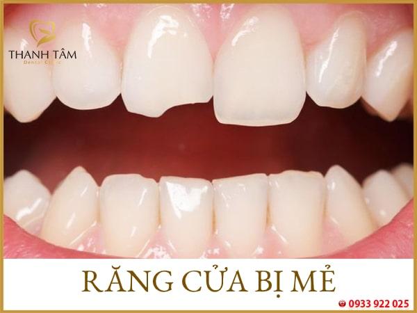 Tình trạng răng bị mẻ