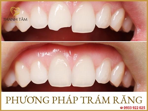 Trám răng khôi phục cấu trúc chức năng răng