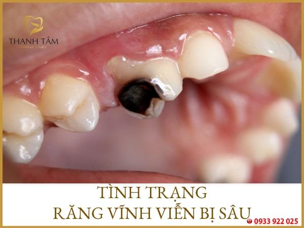 Răng vĩnh viễn bị sâu