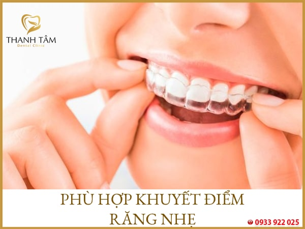 Phù hợp với khuyết điểm răng nhẹ