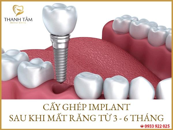Tùy thuộc vào từng tình trạng răng của khách hàng