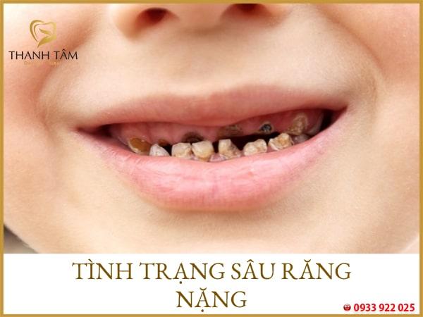 bé 2 tuổi bị sâu răng