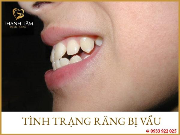 tình trạng răng bị vẩu