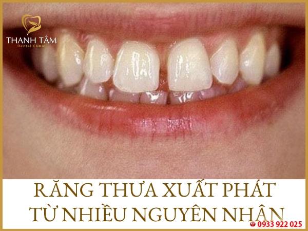 Trị răng thưa