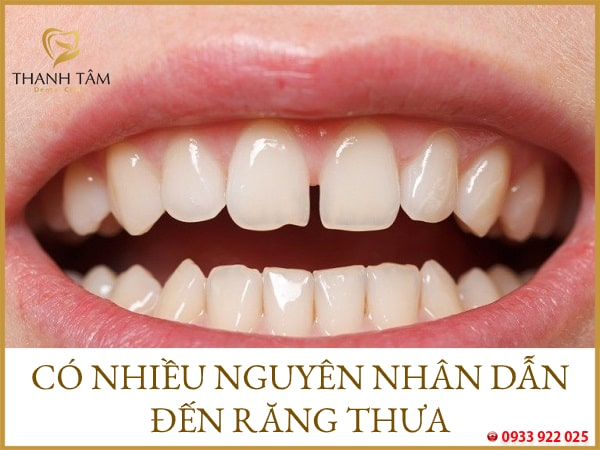 răng thưa xuất phát từ nhiều nguyên nhân khác nhau