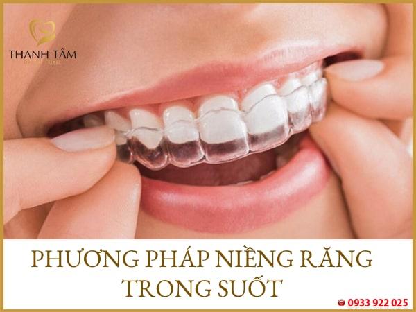 phương pháp niềng răng hiện đại