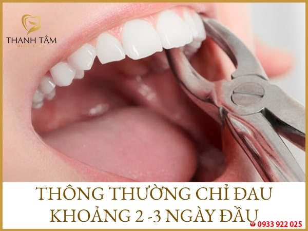 nhổ răng đau mấy ngày