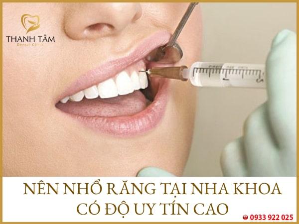 Nên nhổ răng tại những nha khoa uy tín