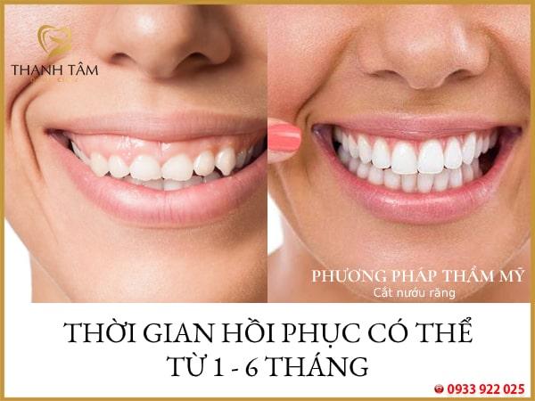cắt nướu răng bao lâu thì lành