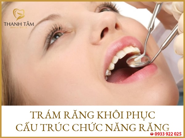 Nên trám răng tại nha khoa uy tín