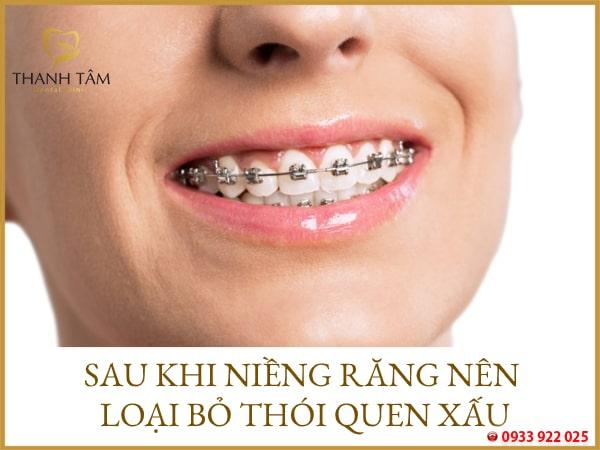 Niềng răng xong nên chú ý điều gì