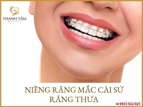 hình ảnh niềng răng mắc cài sứ