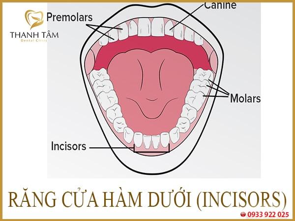 mất răng hàm dưới