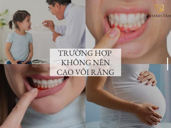 Trường hợp không nên cạo vôi răng