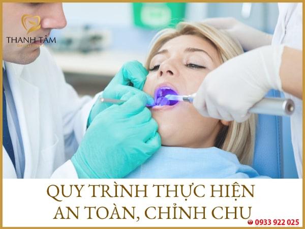 Quy trình trám răng nhanh chóng