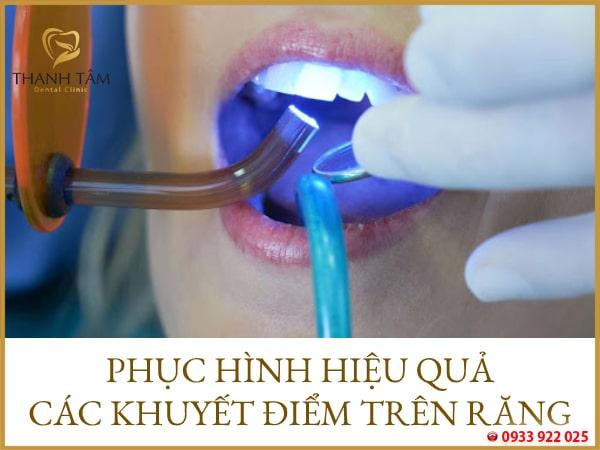 Phục hình các khuyết điểm răng