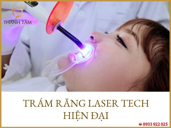 Trám răng Laser Tech