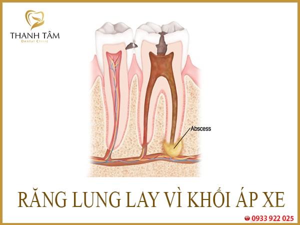 răng vĩnh viễn bị lung lay