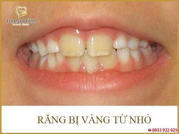 Răng bị vàng từ nhỏ