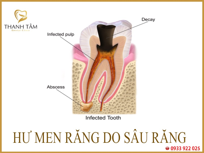 Hư men răng