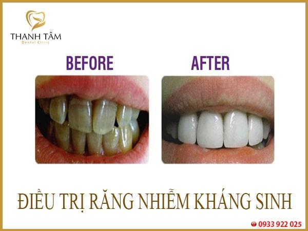 Răng vàng từ nhỏ
