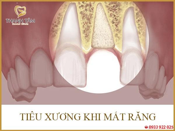răng bị tiêu xương