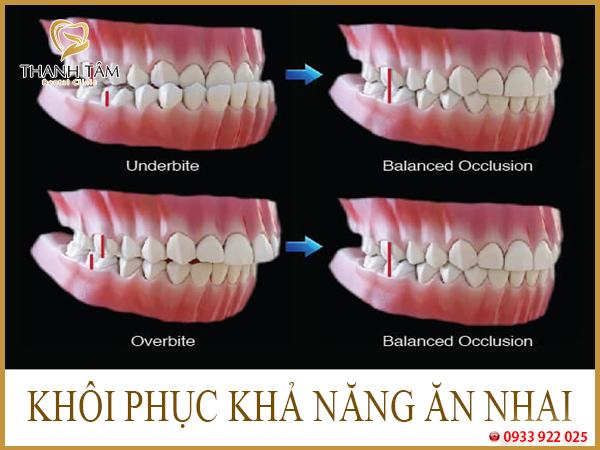 Niềng răng bị móm